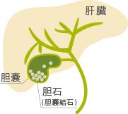 ポリープ 胆嚢